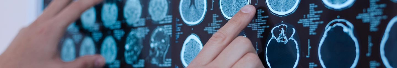 Rezonans Magnetyczny Rezonans Magnetyczny Tomografia