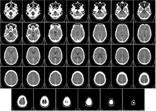 Tomografia komputerowa Głowy wPoznaniu